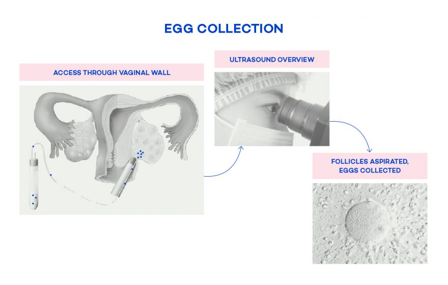 egg-collection-diagram